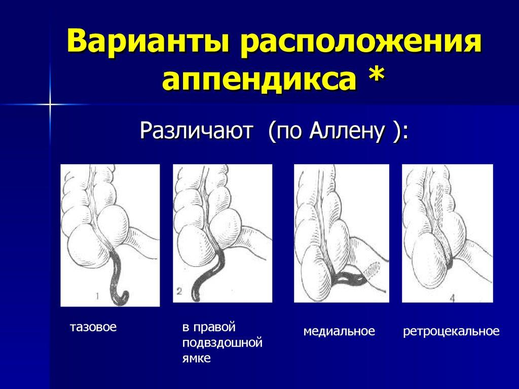 Расположение аппендикса
