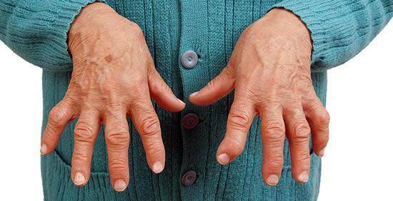 Ревматоидный артрит: лечение в домашних условиях