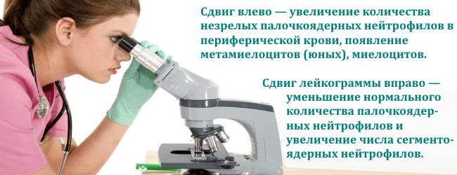 Сдвиг вправо и влево лейкоцитарной формулы