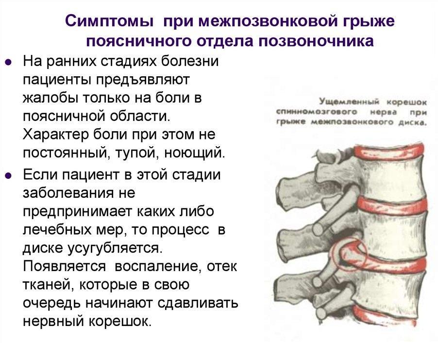 воспаление межпозвоночной грыжи снятие боли