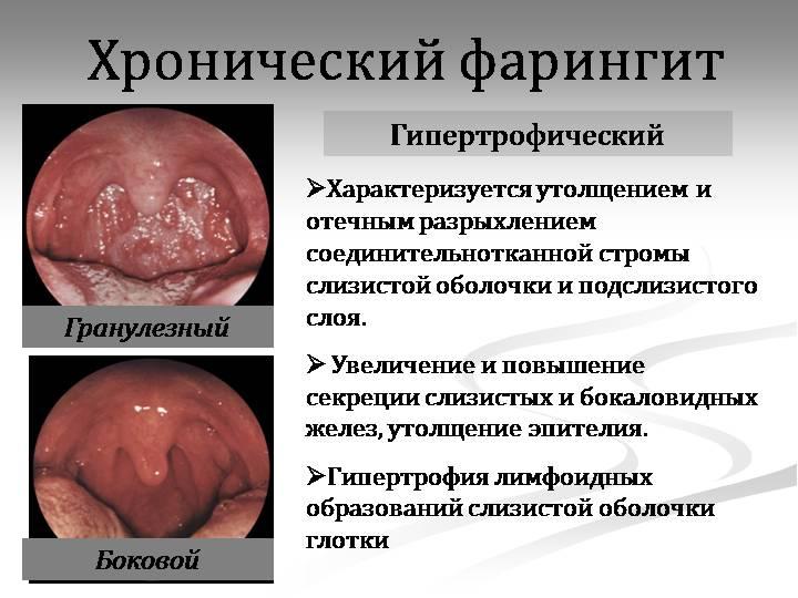 Симптомы гипертрофического фарингита