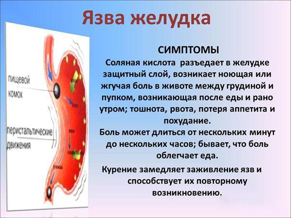 Симптомы при язве желудка