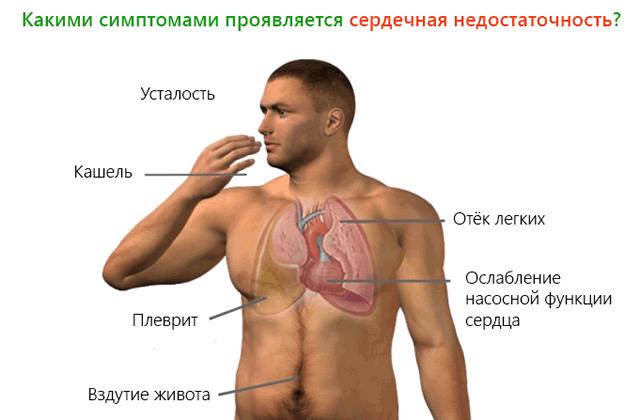 Хроническая сердечная недостаточность симптомы и лечение