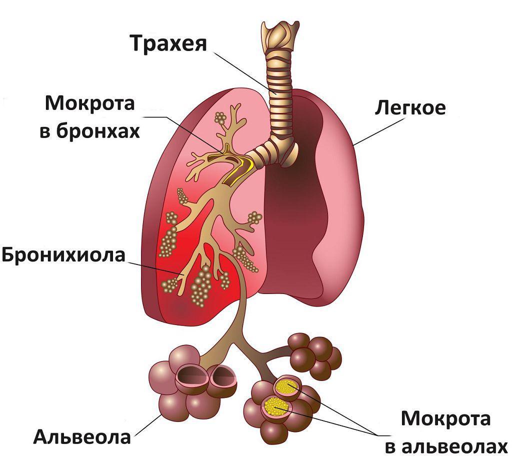 Состояние легких при пневмонии