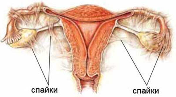 Спайки в области матки