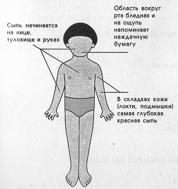 Специфические симптомы скарлатины
