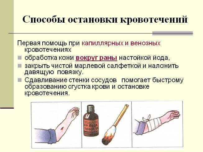 Способы остановки кровотечения