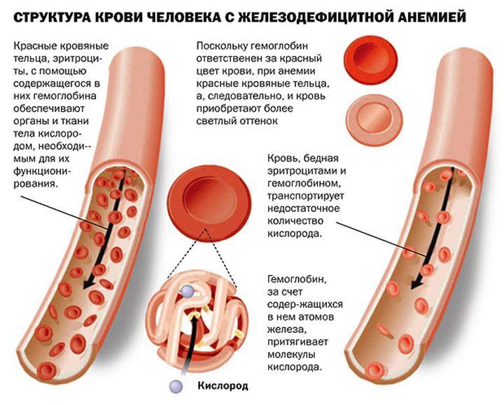 Структура крови при железодефицитной анемии