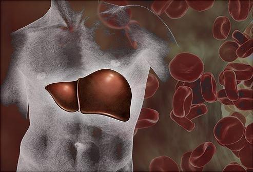 Токсический гепатит: симптомы и лечение