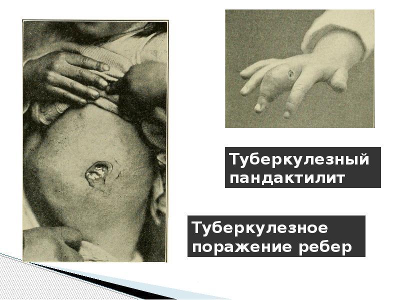 Туберкулезное поражение ребер и туберкулезный пандактилит