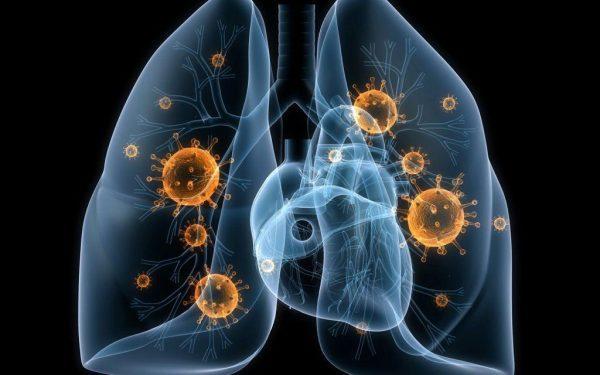Туберкулез: описание, симптомы, причины