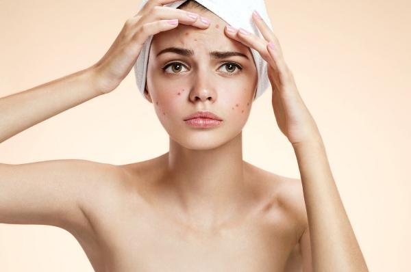 Угри на лице могут быть следствием гастрита, при этом само заболевание протекать бессимптомно