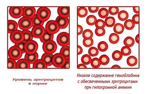 Уровень эритроцитов при гиперхромной анемии