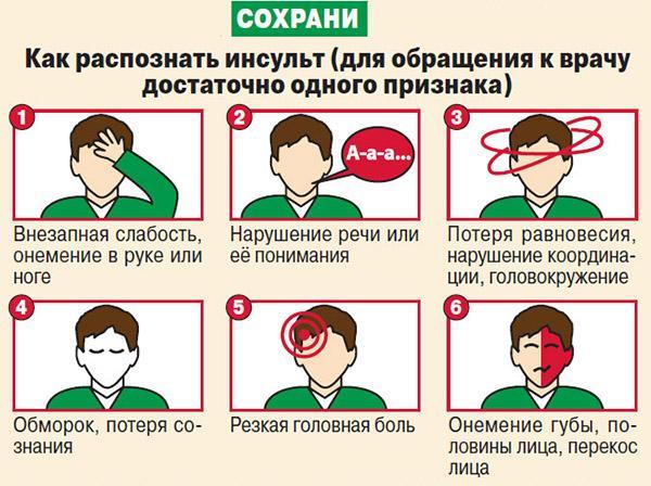 Факторы, которые говорят об инсульте