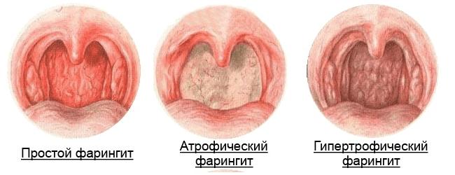 Фарингит изнутри