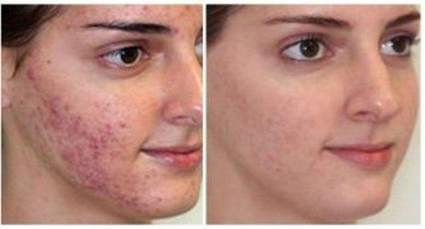 Фото до лечения и после