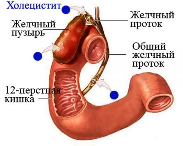 Холецистит — воспаление желчного пузыря
