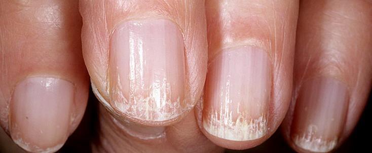 Гибок поразил не более трети ногтевой пластины
