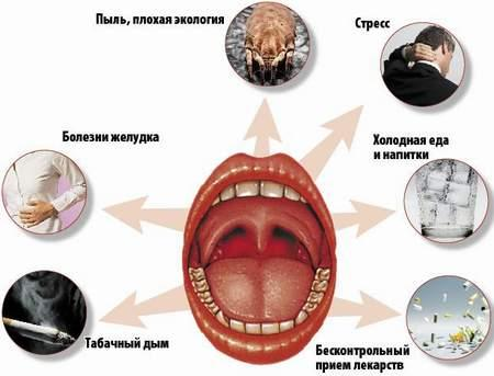 Что может вызвать боль в горле