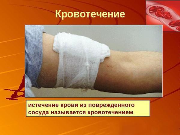 Что такое кровотечение