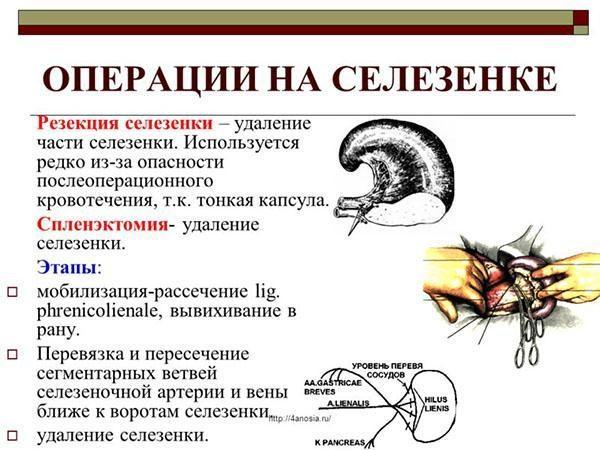 Этапы операции на селезенке