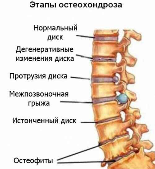 Этапы остеохондроза
