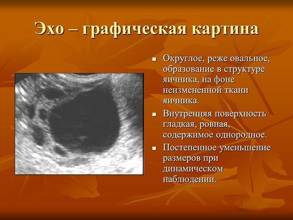 Эхографическая картина кисты яичника