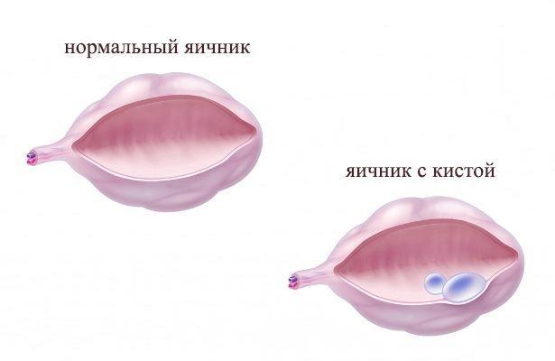 Яичник с кистой изнутри