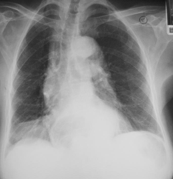 Рентгенография. Диафрагмальная грыжа