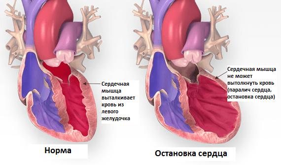 В тяжелых случаях мерцающей аритмии возможна остановка сердца
