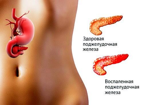Нарушение в работе поджелудочной железы может стать причиной высыпания на лице