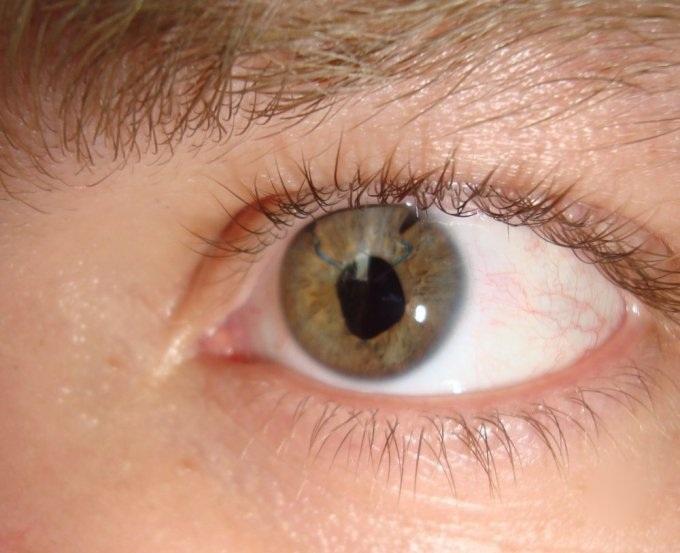 При поражении паразитами глаз возможно отслоение сетчатки и слепота