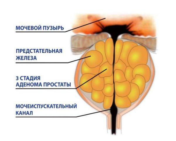 3 стадия аденома простаты