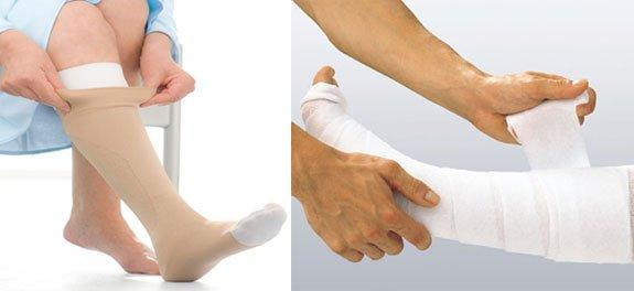 При выборе наружного применения на ноги делается компресс