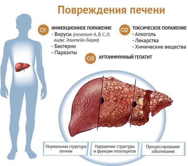 Виды, и причины поражения печени