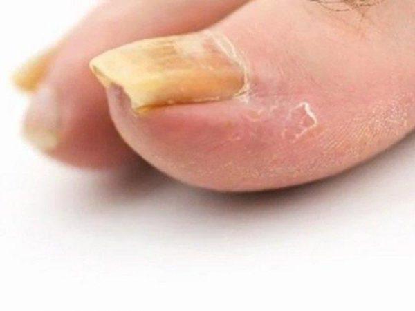 Медицина препарат от грибка на под ногтями