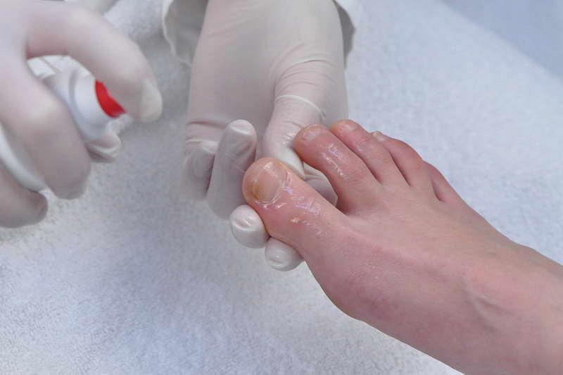 Затем нужно обработать ногти любым антисептиком