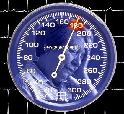 Гипертония - заболевание связанное с повышением давления