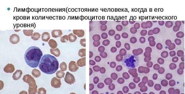 Лимфоцитопения