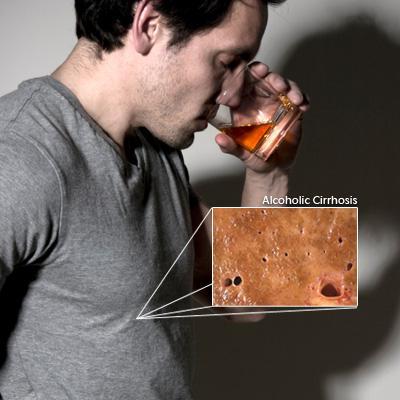 Злоупотребление алкоголем приводит к заболеванию печени