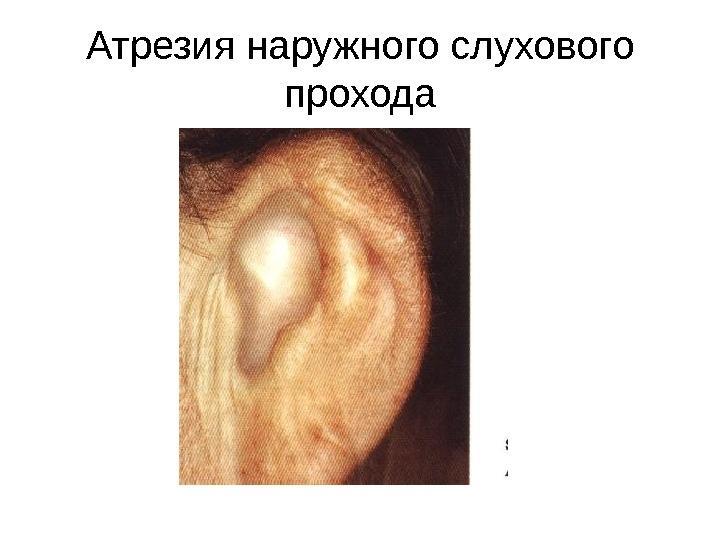 Атрезия ушной раковины