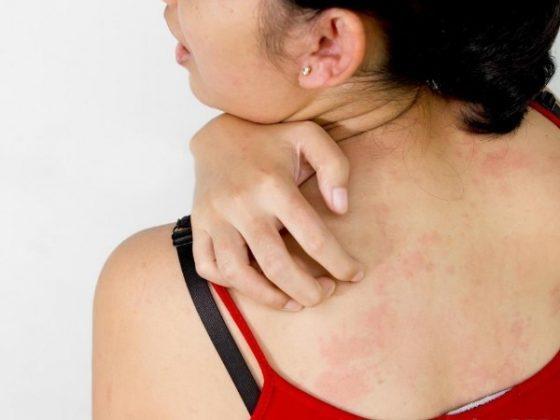 Хроническое течение сопровождается болями в суставах, кожным зудом и другими аллергическими реакциями