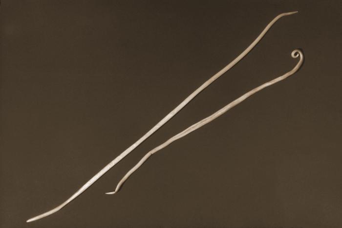 Возбудитель аскаридоза- Ascaris lumbricoides