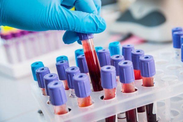 Лечение назначается только после исследования крови на антитела