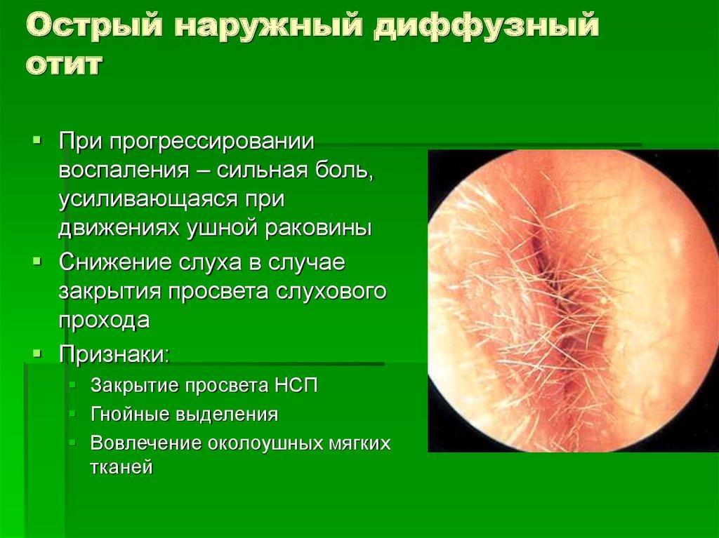 Симптомы диффузного отита