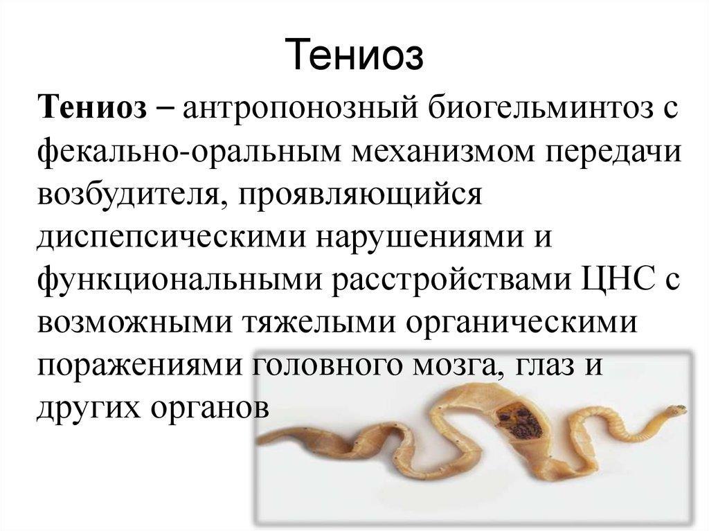 Тениоз