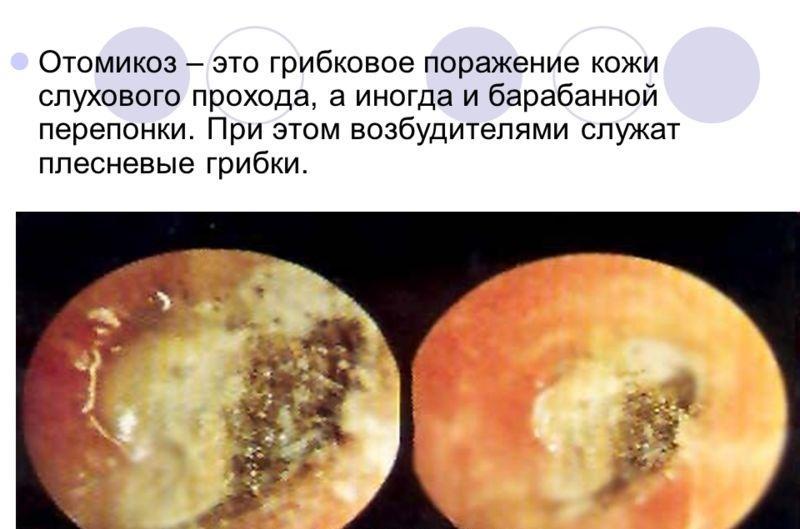 Октомикоз