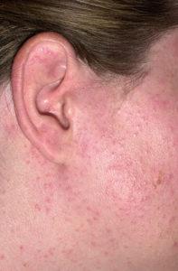 В случае аллергической реакции могут появится высыпания