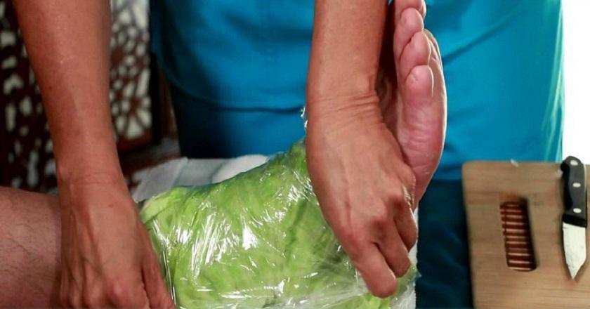 Лечение варикоза капустными листьями