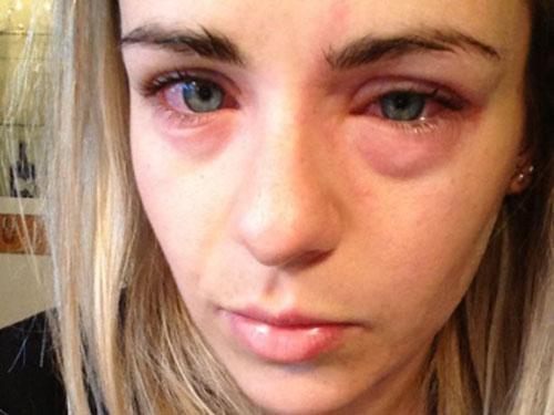 Трихинеллез сопровождается отеком лица, сильными аллергическими реакциями, коньктивитом